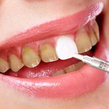 去黄牙 清洁牙齿笔 去烟渍牙渍黄牙垢 网红推荐