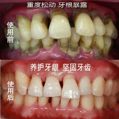 旱莲固齿散牙齿松动牙粉非牙龈萎缩修复牙周牙龈炎出血肿疼牙齿痛