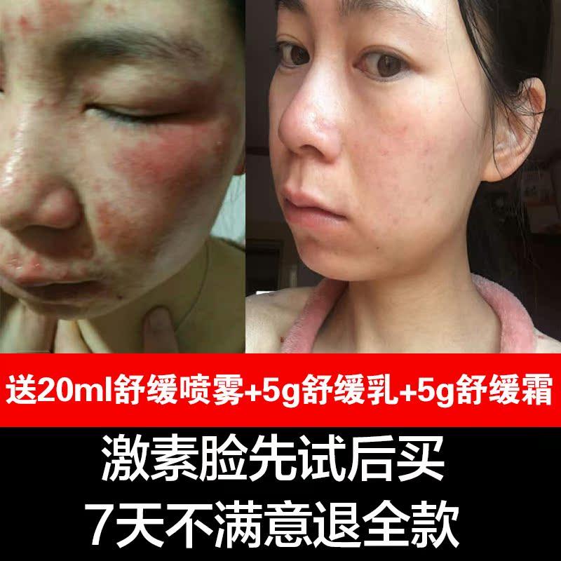 草本精华液补水去红血丝修复角质层激素脸红脸蛋控油抗过敏护肤品